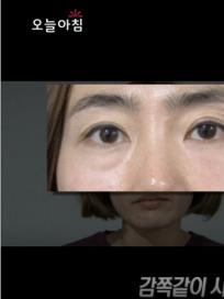 MBC '생방송 오늘아침' 눈 밑 지방제거 성형수술 없이! 눈 밑 지방 없애는 5분 마사지법 소개(ft.배은정 마사지 테라피스트)