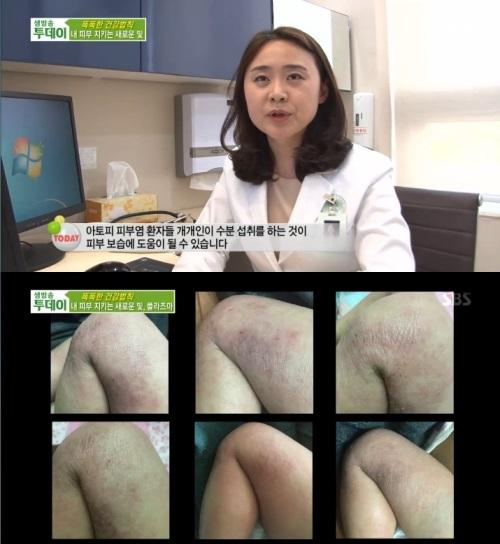 SBS '생방송 투데이' 방송캡쳐