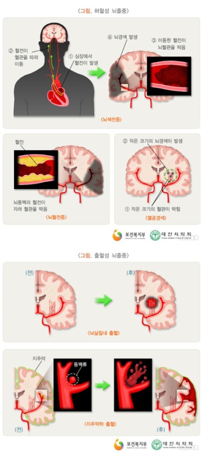 EBS '명의' 뇌혈관 질환? 뇌동맥류, 뇌출혈, 뇌경색, 뇌졸중...전조초기증상·응급대처법·원인·진단·치료...EBS 1TV '명의' 545회에서는 라는 주제로 이와 관련된 각종 건강정보를 전한다. EBS 1TV '명의'에서는 신속하고, 정확한 치료로 죽음의 문턱 앞에 선 생명을 구하는 올바른 뇌혈관 질환의 진단과 치료법 그리고 응급 대처 방법에 대해 EBS 1TV '명의' 545회 을 통해 자세히 알아본다. EBS 1TV '명의' 545회 편에 출연한 의료진은 신경외과 뇌혈관시술 전문의 권오기 교수, 신경외과 전문의 방재승 교수 등 2명이다. / 전문의료진소개 (담당 전문의/출연 의사) '명의' 다시보기, 재방송 시간안내 (자료출처: EBS 1TV '명의' 공식 홈페이지 545회 뇌혈관 편 미리보기 방송정보) /사진=EBS 1TV 건강정보 프로그램 '명의' 545회 명의 자료실 뇌졸중 관련자료 캡처(보건복지부, 대한의학회)