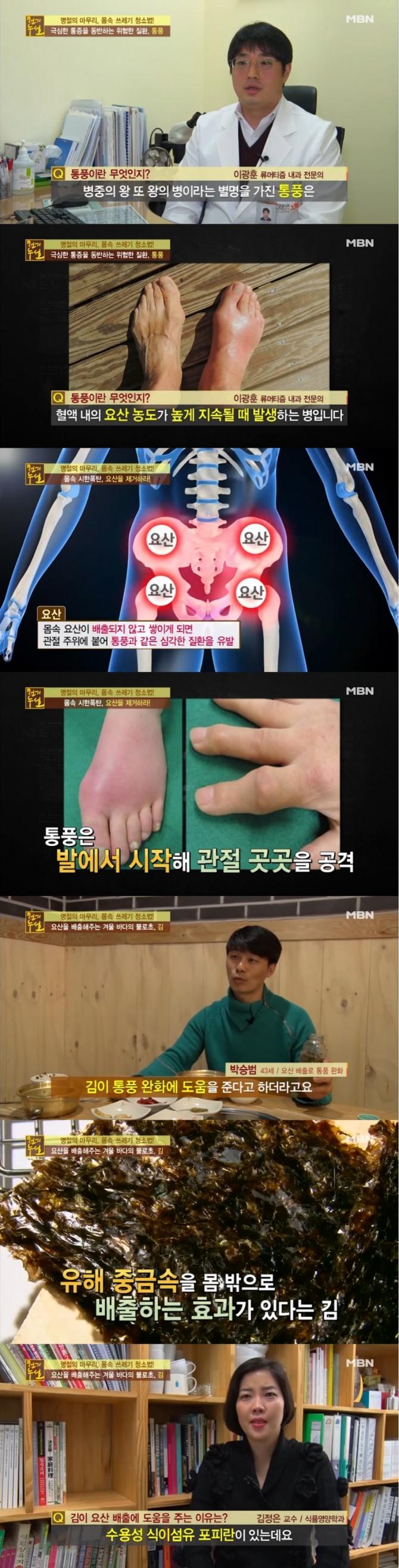 18일 밤 방송된 MBN '천기누설'에서는 '몸속 쓰레기 청소법' 특집으로 요산이 통풍의 원인이 되며 김이 요산을 몸밖으로 배출하는데 탁월한 효과가 있는 것으로 밝혀졌다. 사진=MBN 방송 캡처
