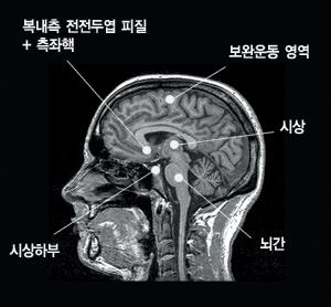 뇌웃음 영역