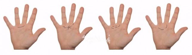 중지아래 손바닥에서 약지아래 손바닥으로 이어지는 반달 모양의 금성대. 매혹선 또는 에로스 선으로 불린다.