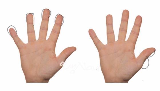 돈을 잘 버는 손은 엄지 손가락이 굵고 튼실해야 한다.